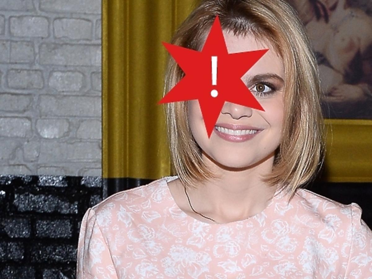 Ada Szulc z bliznami po wypadku