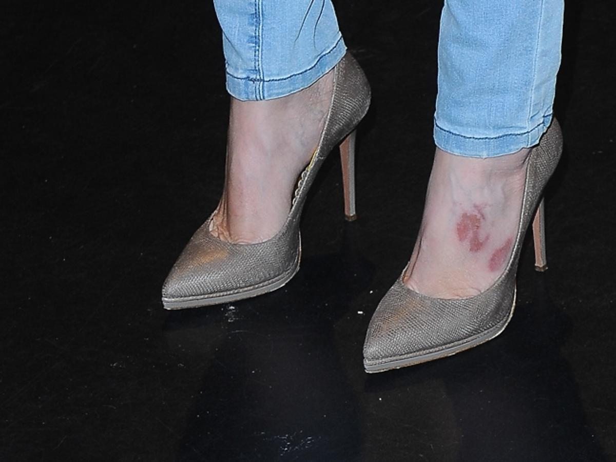 Agata Młynarska z poranionymi stopami