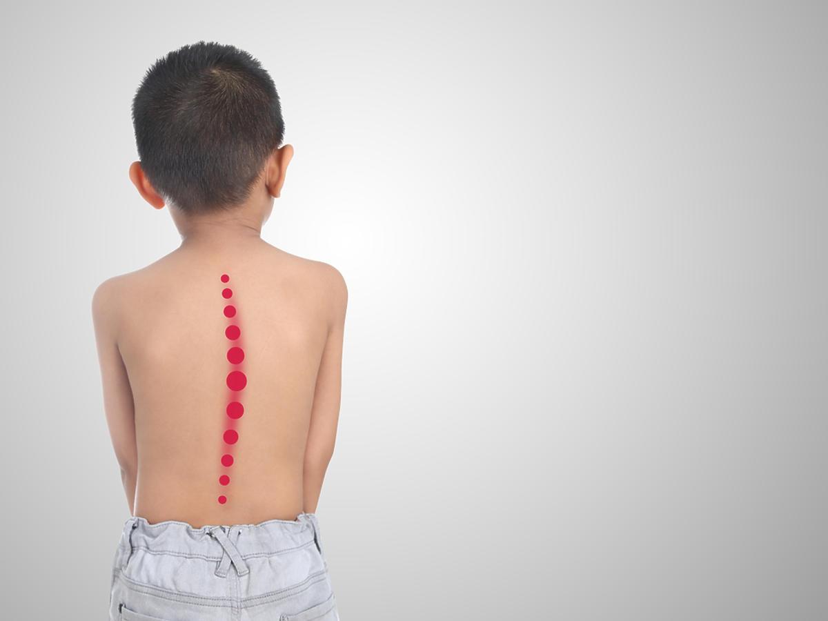 chłopiec chory na skoliozę