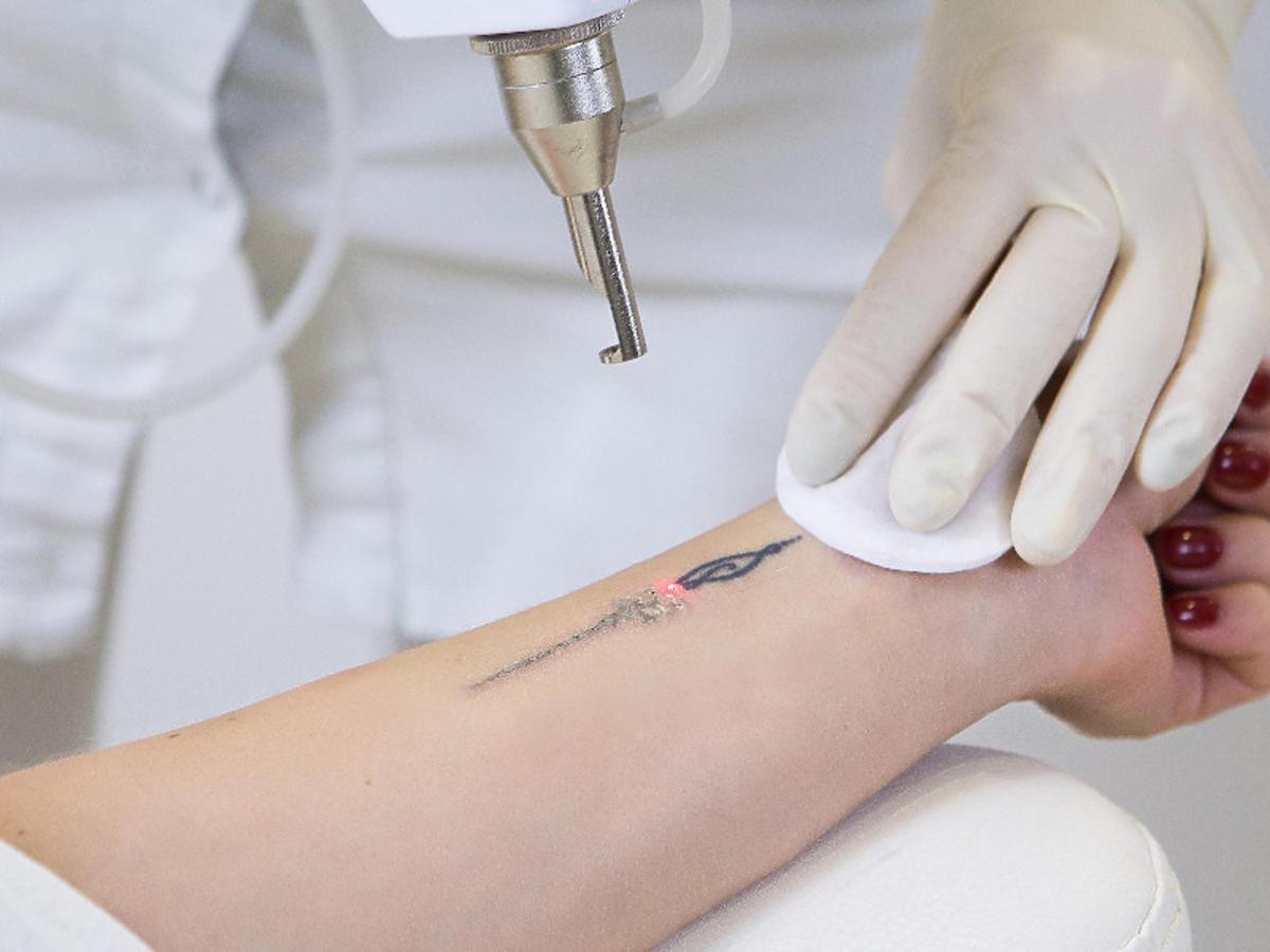 fotona-tatuaż