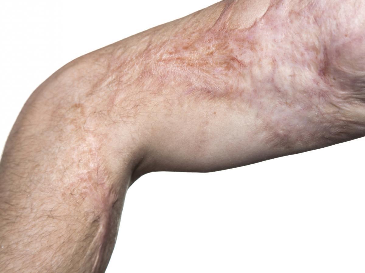 Głęboka rana - poparzenie skóry