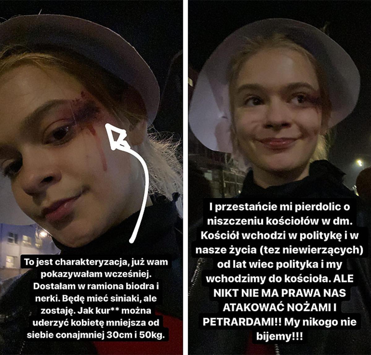 Julia Wróblewska pobita podczas protestu na Strajku Kobiet