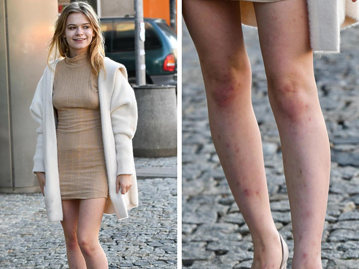 Julia Wróblewska pokazała posiniaczone nogi