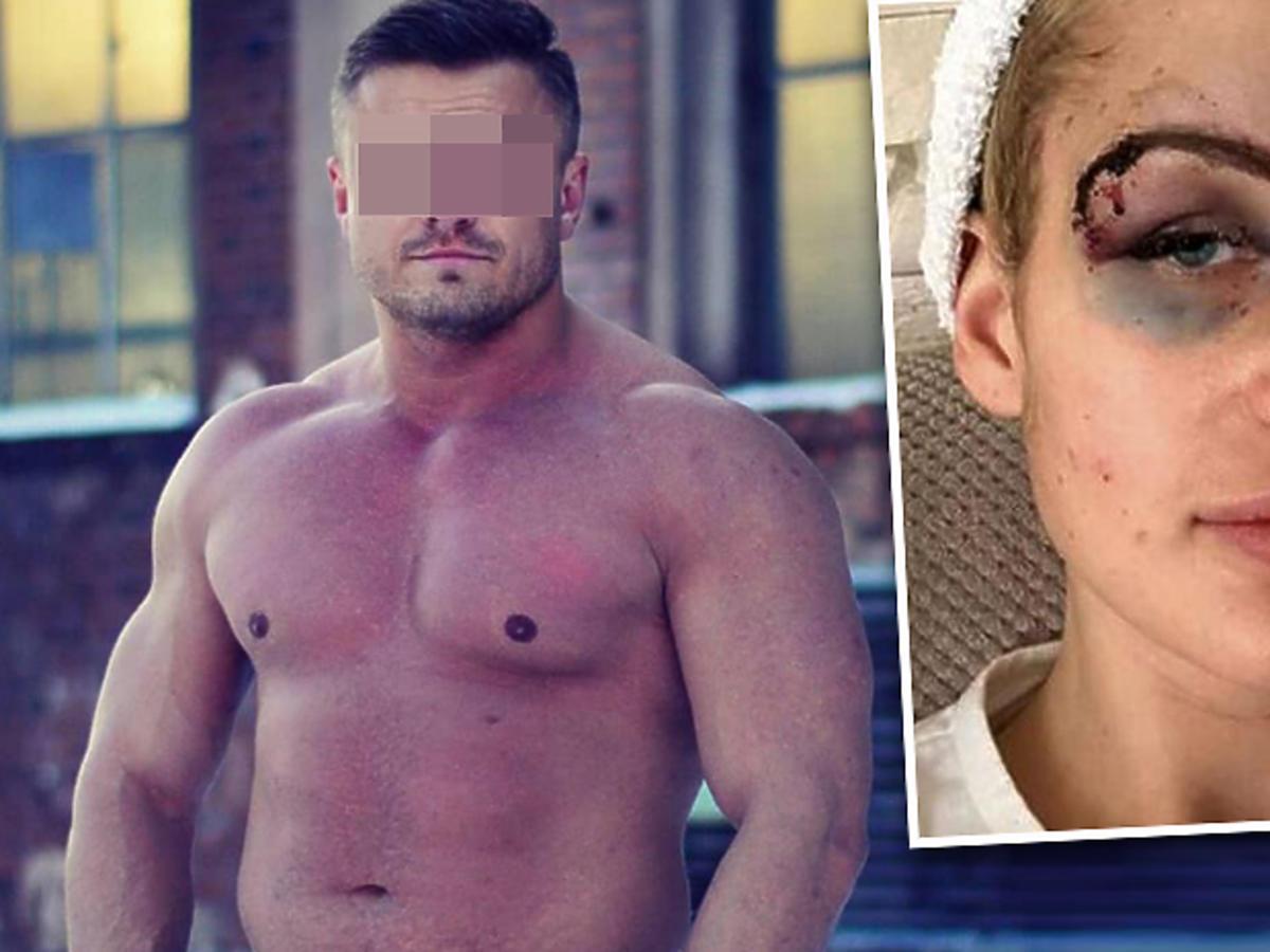 Katarzyna Dziedzic pobita przez swojego chłopaka, trenera personalnego