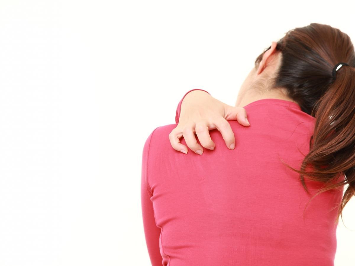 Kobieta drapie się po plecach w wyniku alergii