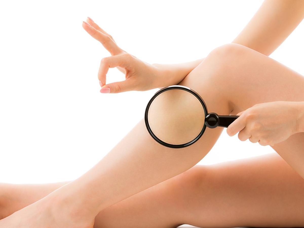 Kobieta prezentuje swoje nogi tuż po depilacji.