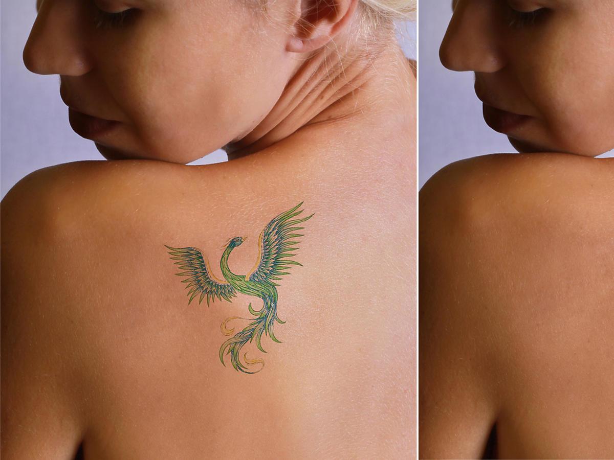 kobieta z tatuażem na łopatce i po ukryciu go