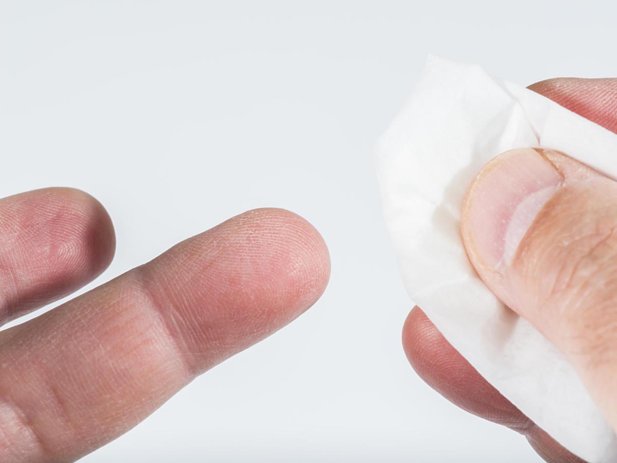 krwotok z palca