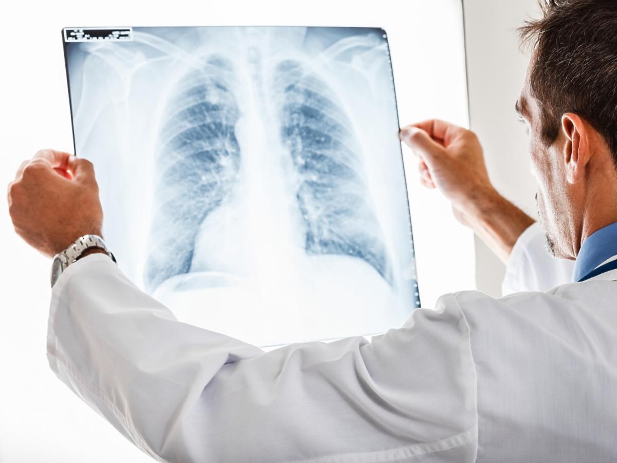 Lekarz ogląda zdjęcie RTG płuc