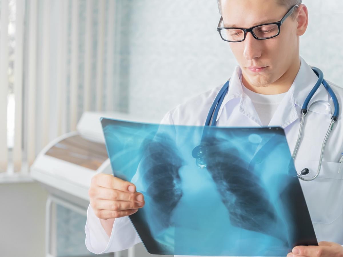 lekarz oglądający rentgen
