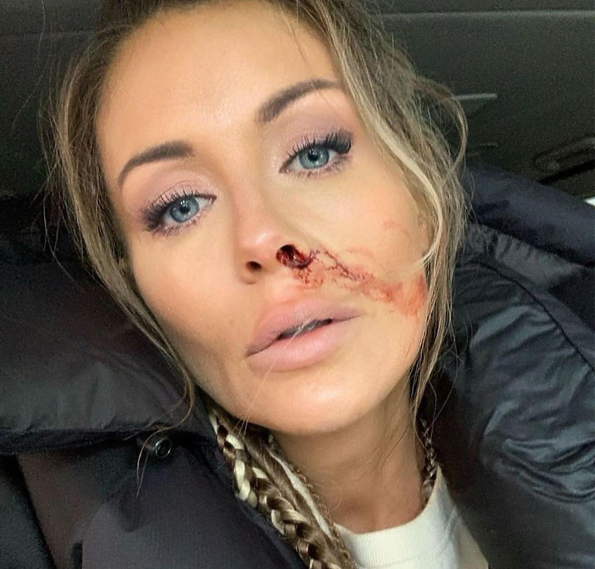 malgorzata rozenek z krwawiącym nosem