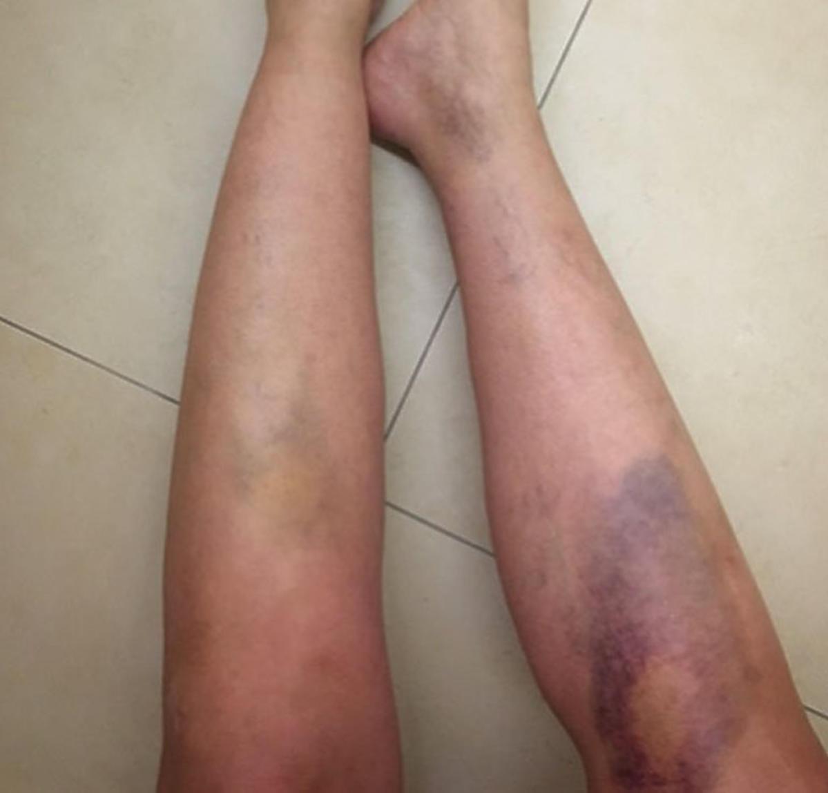 Martyna Wojciechowska pokazała jak wyglądają jej nogi po wypadku