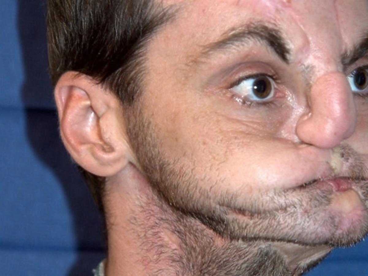Mężczyzna po przeszczepie twarzy na okładce prestiżowego magazynu