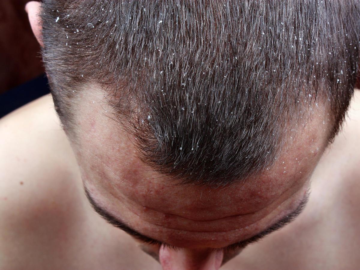 mężczyzna z łupieżem na głowie