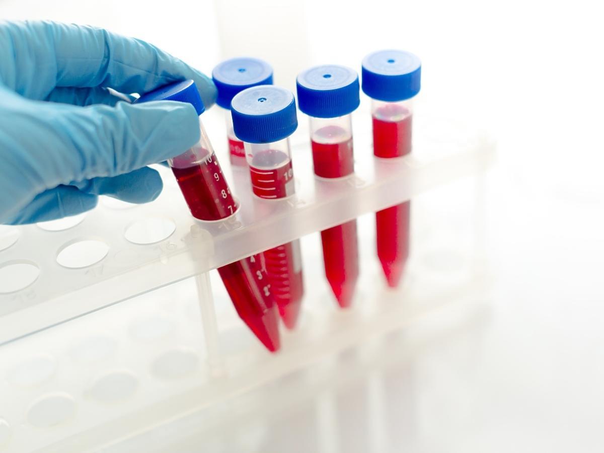 Nadmiar leukocytów