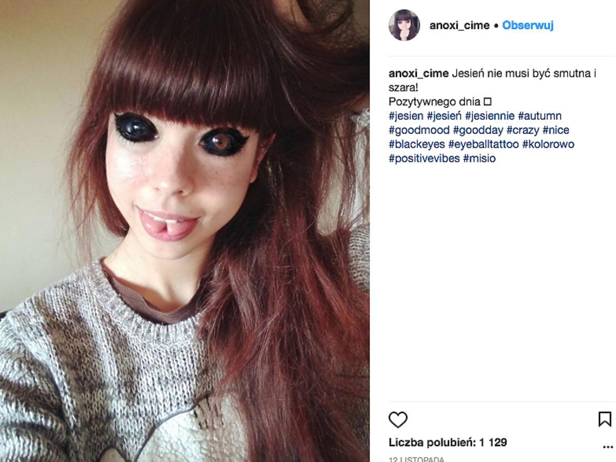 Ola Sadowska traci wzrok po wytatuowaniu gałek ocznych
