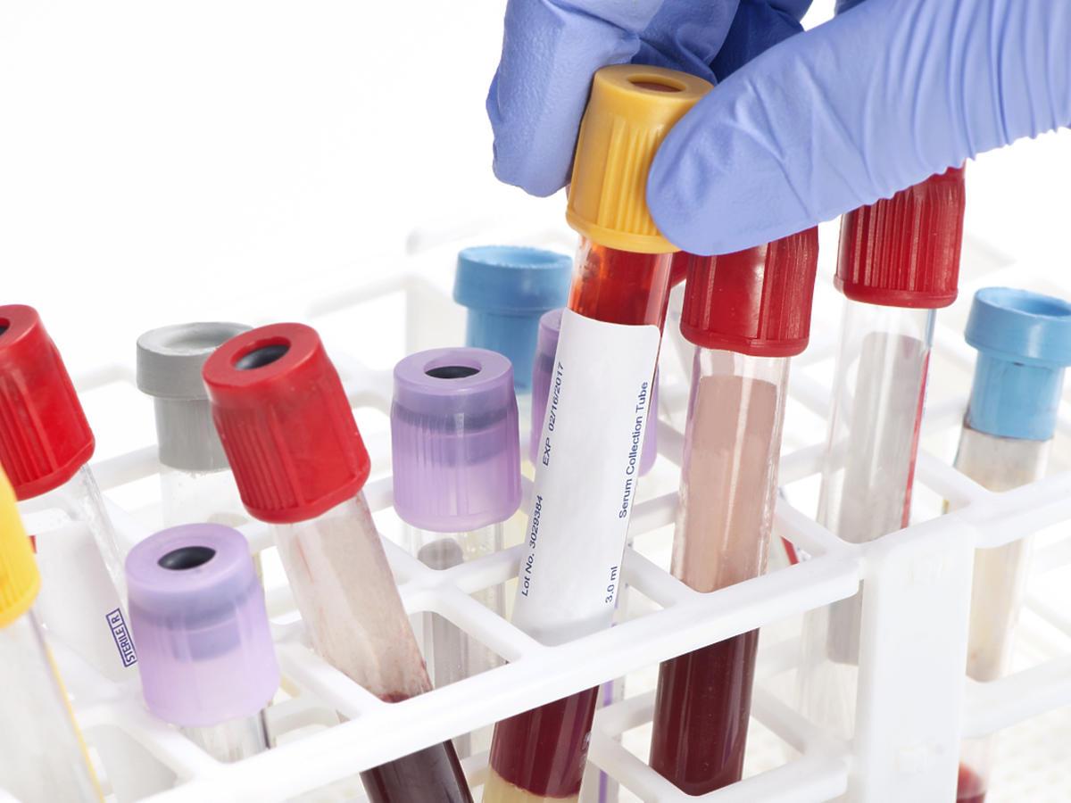 Próbki krwi pobrane od pacjenta do badania.