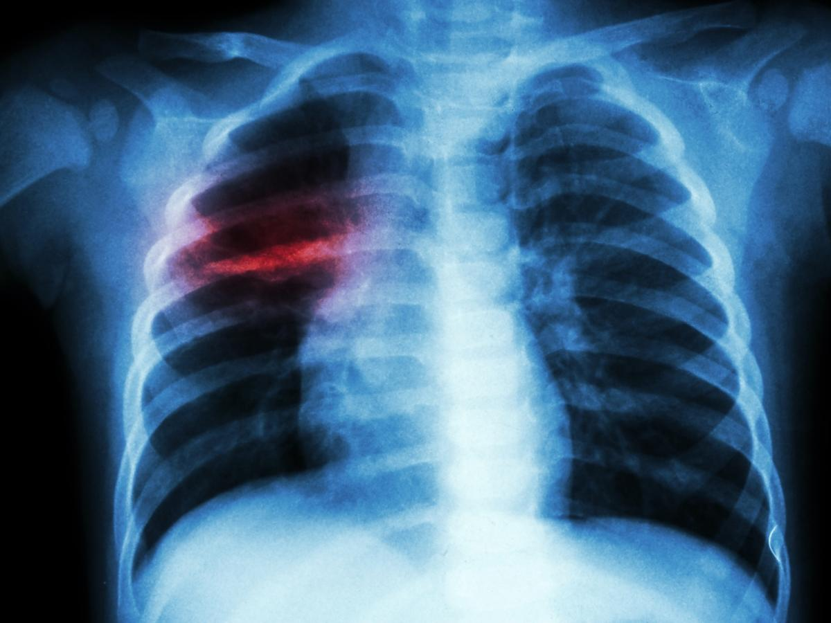 RTG płuc