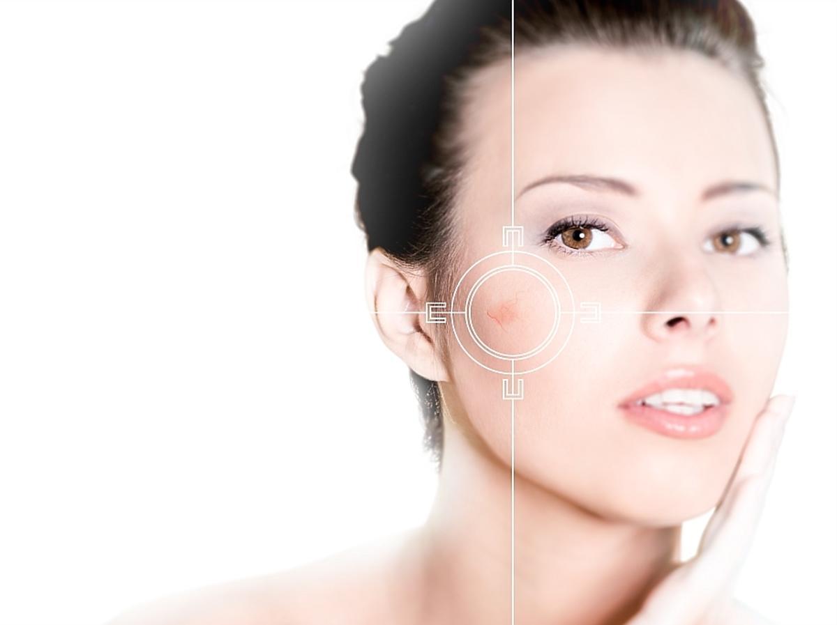 twarz kobiety z przebarwieniami