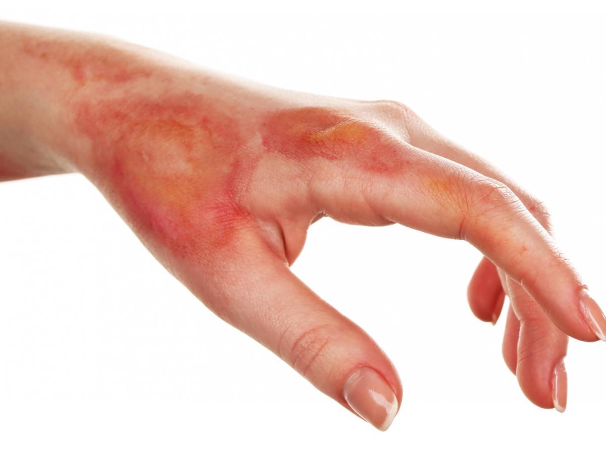 Wyciągnięta dłoń z ranami po oparzeniu.