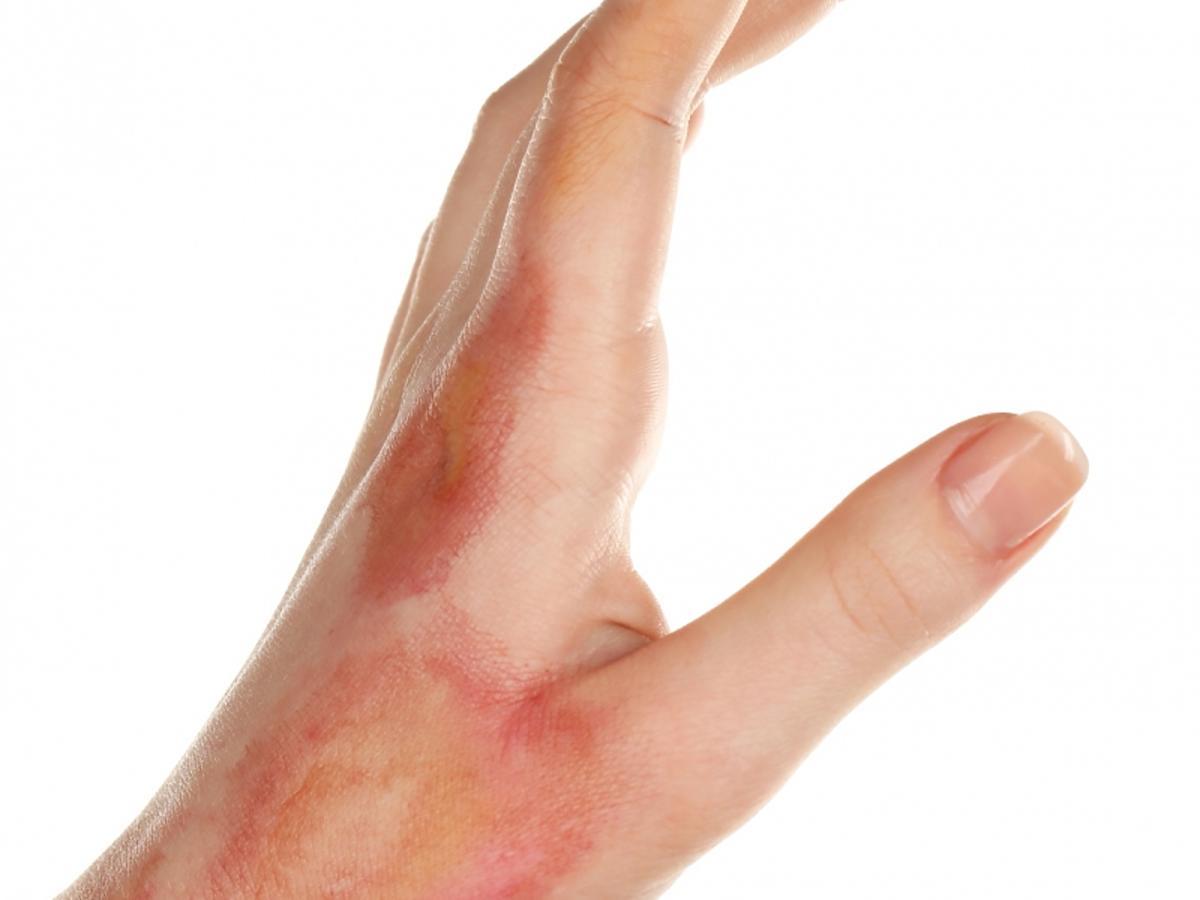 Zadbana dłoń z oparzeniami.