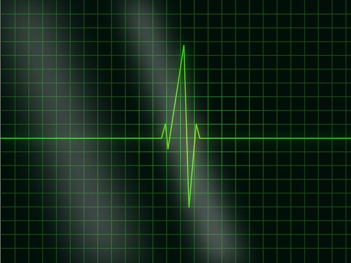 zapis pracy serca