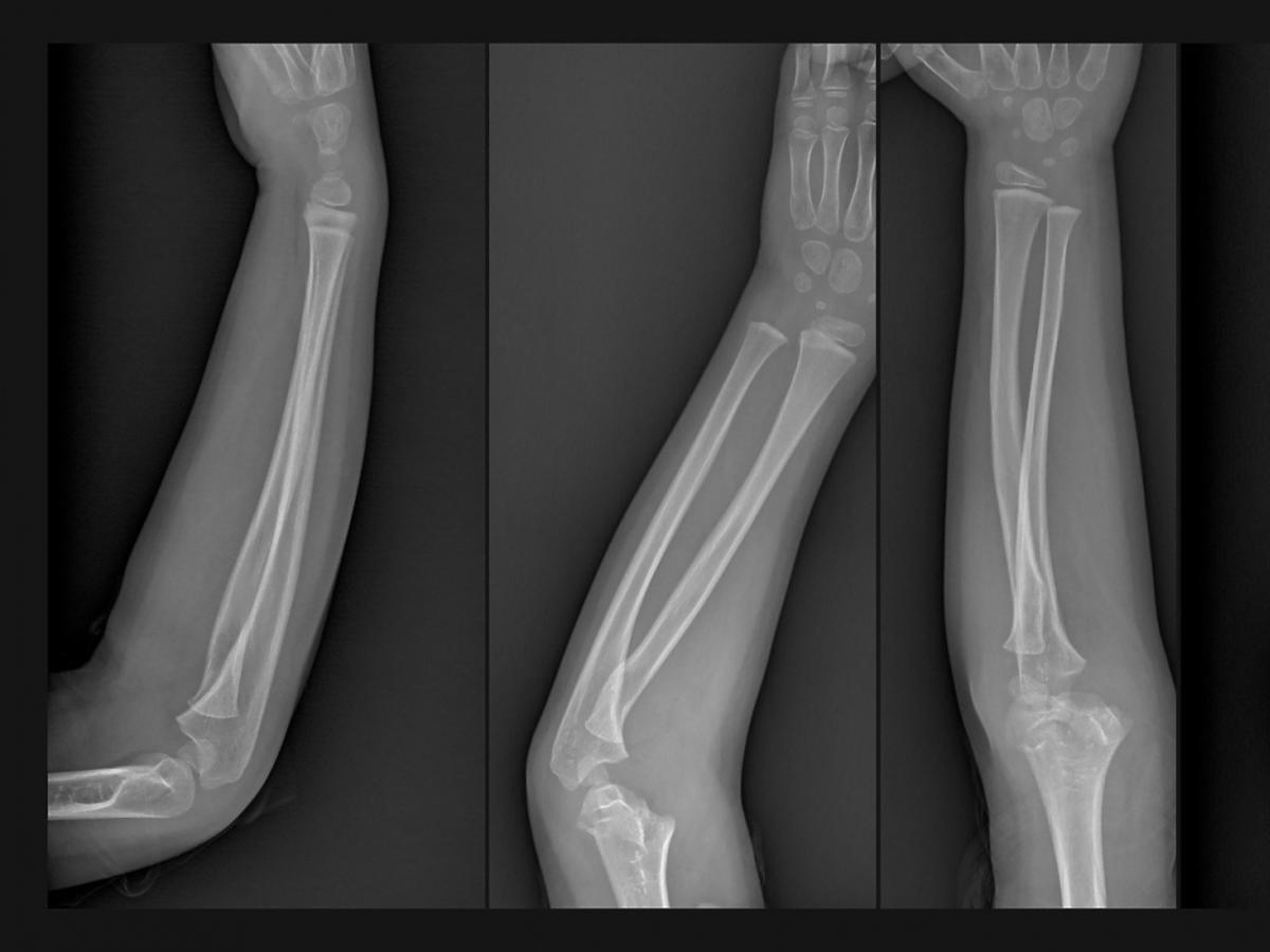 Zdjęcie rentgenowskie ręki